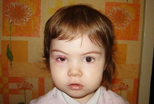 как лечить ячмень на глазу у ребенка